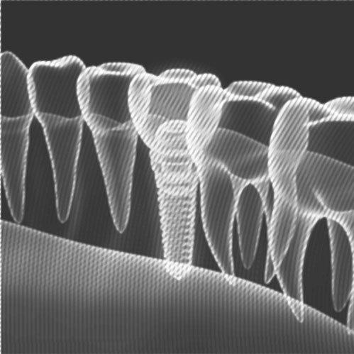 schematische Darstellung einer zahnreihe, ein fehlender zahn ist durch ein Implantat plus Krone versorgt