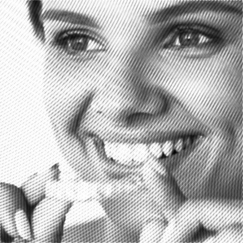 transparente schiene wird in den mund gesetzt, invisalign-system